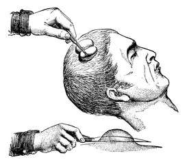 Extirpation of a magnifying glass on the scalp, vintage engravin