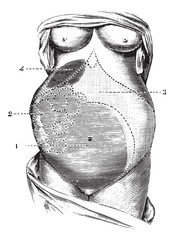 Multilocular ovarian cyst, vintage engraving.
