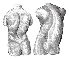 Cast of two varieties of scoliosis, vintage engraving.