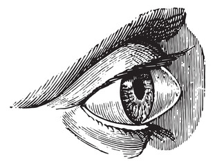 Staphyloma, keratoconus or pellucid, vintage engraving.