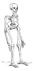Skeleton deformed by rickets which deflected the spinal column, vintage engraving.