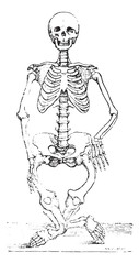 Skeleton deformed by rickets, vintage engraving.