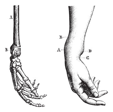 Fracture of the lower extremity of the radius, vintage engraving