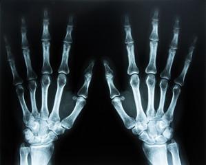 Zwei Hände Röntgenaufnahme