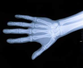 Xray image of human arm