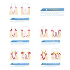 the progress of periodontal disease, gum disease..
