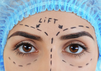 Plastic surgery concept. Portrait of beautiful woman with marking on face