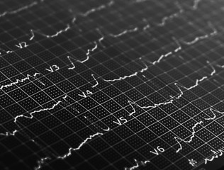 Ecg graph, electrocardiogram background