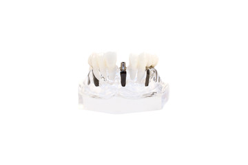 glass jaw model with implanted dentures