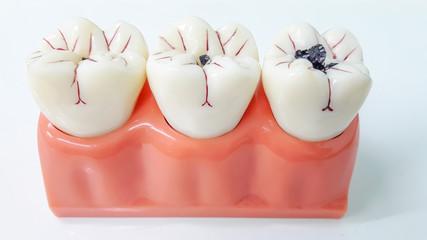 dental model,teeth model on white background.