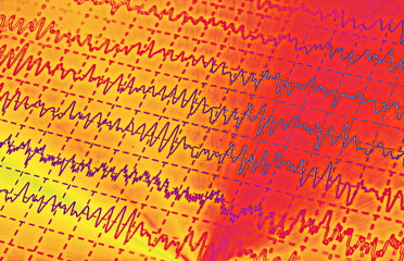 brain wave on electroencephalogram, EEG for epilepsy, illustration