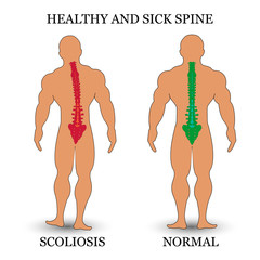 Healthy and diseased spine, scoliosis and normal condition, a medical training poster. Vector illustration.