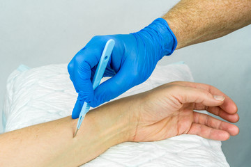 Hand with blue medical glove holding a scalpel to make an incision on an arm. Close up with white background.