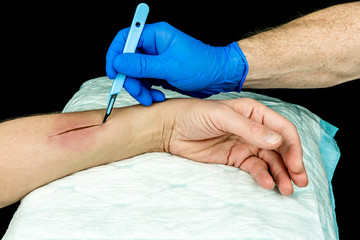 Hand with blue medical glove holding a scalpel making an incision on an arm. Open wound surgery. Close up with black background.