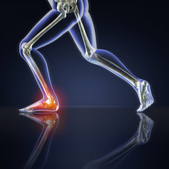 X-ray Runner with Ankle Pain