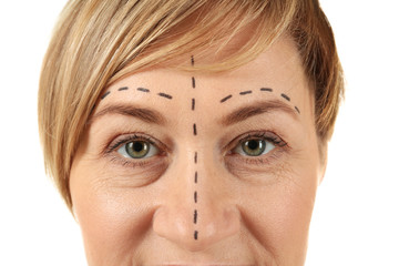 Woman with marks on face for plastic operation