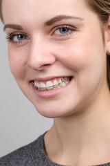 Junges Mädchen lächelt mit ihrer Zahnspange