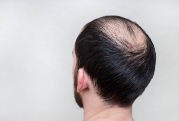 male head with thinning hair or alopecia  Wall mural