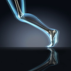 X-ray of Running Leg