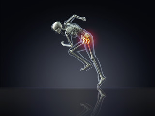 X-Ray Woman Running with Hip Pain