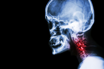 Cervical spondylosis . film x-ray skull lateral view and neck pain .