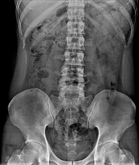 X-Ray Image the spine fornt view Of Human for a medical diagnosis