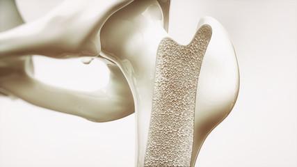 Osteoporosis stage 1 of 4 - upper limb bones - 3d rendering