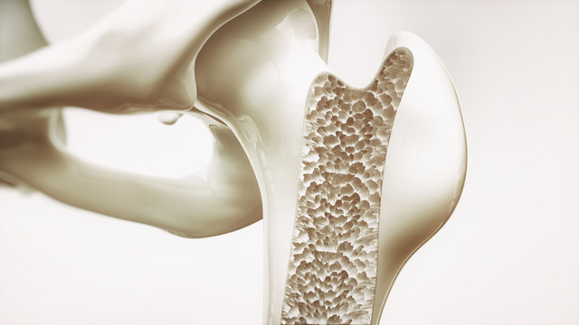 Osteoporosis stage 4 of 4 - upper limb bone - 3d rendering