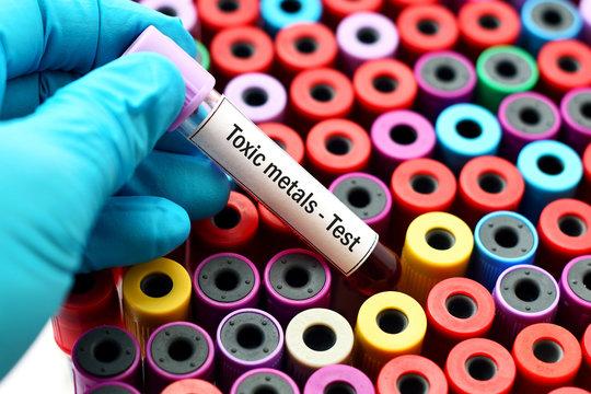 Toxic metals test