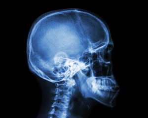 Film x-ray skull and cervical spine lateral view