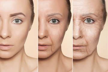 anti-aging procedures on caucasian woman face