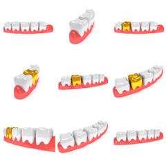 Teeth on gingiva isolated on white background set. 3D render. Dental, medicine, health concept.