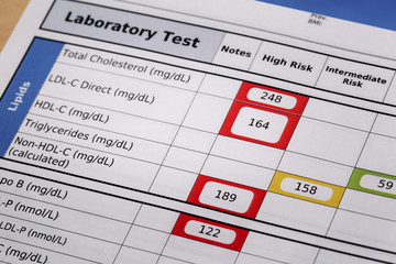 high risk cholesterol test results