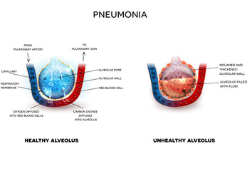 Pneumonia illustration, alveoli with fluid and healthy Alveoli, oxygen and carbon dioxide exchange between alveoli and capillaries.