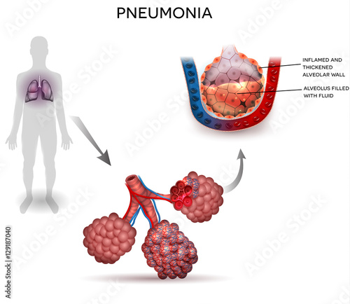 Pneumonia Illustration Human Silhouette With Lungs Close Up Of