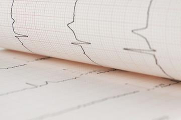 EKG heart sheet
