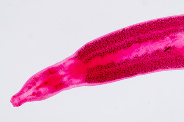 Flukes infestation (parasite) under microscope view.