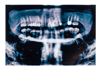 X-ray scan of humans teeth, simulated pain