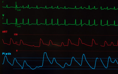 Close up of a medical monitor with green lines of ECG showing atrial fibrillation, a red line showing  the arterial blood pressure and the blue line showing the oxygen saturation level.