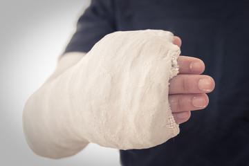 Close up of a long arm cast