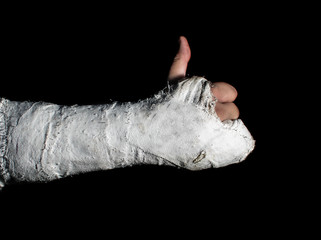 Arm in a cast giving thumbs up