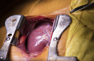 Beating human heart close-up in opened chest during the surgery