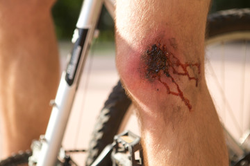 Man with a wound on his knee