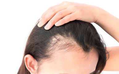 Woman serious hair loss problem for health care shampoo and beau Wall mural