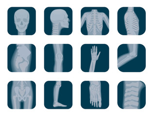 Vector realistic X-ray skeleton icons set. Human Skeleton xray elements. Body parts icon.