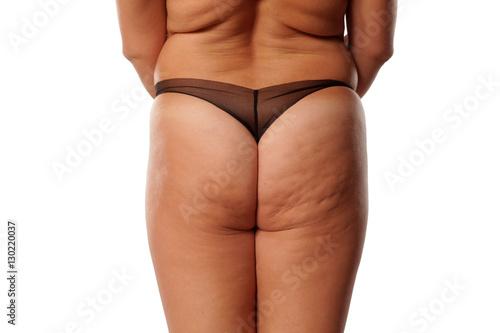 Fat Cellulite Ass 110
