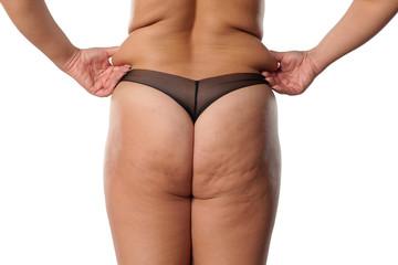 Fat Cellulite Ass