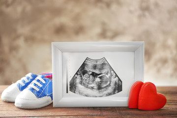 Ultrasound picture of baby in photo frame and children shoes on table