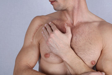 Man man with scar on his shoulder. Laser Scar Reduction concept