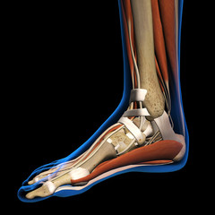 Woman X-ray Medial View of Foot